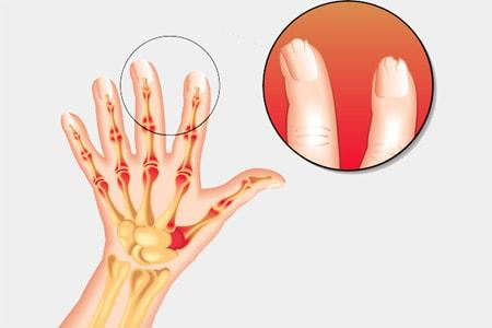 CASPAR Индекс оценки псориатического артрита.